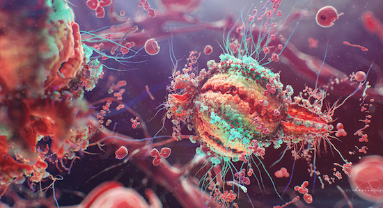 HIV virus AIDS Immunocal